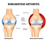 Normal Joint and Rheumatoid Arthritis Royalty Free Stock Photo