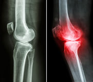 Normal knee and osteoarthritis knee Royalty Free Stock Photos