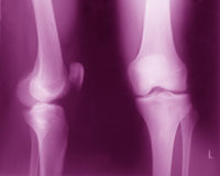 Normal Knee x ray royalty free stock photos