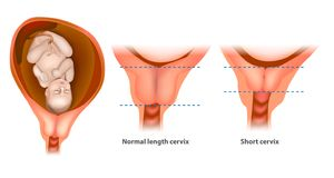 Normal length and short cervix stock illustration
