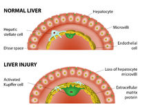 Normal liver and liver injury. Changes in the hepatic associated with hepatic fibrosis. Normal liver and liver injury Royalty Free Stock Photography