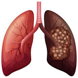 Normal lung and lung cancer Royalty Free Stock Photo