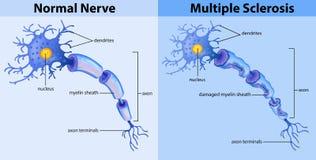 Normal nerve and multiple sclerosis. Illustration royalty free illustration