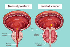 Normal prostate and acute prostatitis. Medical illustration.  Stock Images