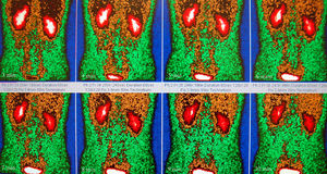 Normal renal flow in red/brown/green Stock Photo
