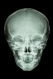 Normal thai childs skull Stock Photography