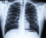 Normal thoracic x-ray image without any findings Stock Photography