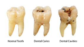 Normal tooth , Dental caries and Dental cavity with calculus . Comparison between difference of teeth decay stages . White. Isolated background . Front side royalty free stock photo