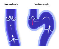 Normal vein and Varicose vein. Healthy vein and Varicose vein. human veins. Vector diagram Royalty Free Stock Photo