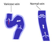 Normal vein and varicose vein Stock Photo