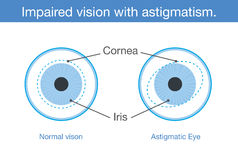 Normal vision and Impaired vision with astigmatism in front view. Stock Photography