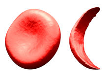 Normal vs Sickle Red Blood Cell Royalty Free Stock Images