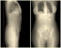 Normal whole body X-ray in a woman Stock Photo