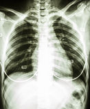 Normal woman's chest with bra. Film chest x-ray : show normal woman's chest with bra royalty free stock photography