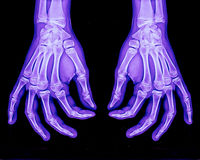 Normal xray of both hands. In healthy patient Stock Photo