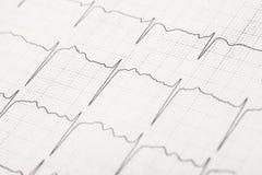 Normala elektrokardiogramrekordvågor Royaltyfria Bilder