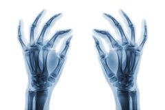 Normala människahänder för röntgenstråle på vit bakgrund Sned sikt Royaltyfri Foto