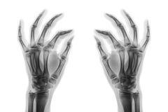 Normala människahänder för röntgenstråle på vit bakgrund Sned sikt Arkivbilder