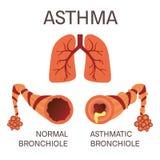 Normala och astmatiska bronchioles royaltyfri illustrationer