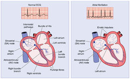 Normale hart elektrogeleiding en atrial fibrillatie vector illustratie