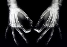 Normale röntgenstraal van beide handen Stock Foto's