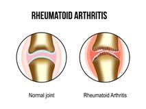 Normale und der rheumatoiden Arthritis Gelenke vektor abbildung