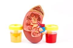 Normale urine, nier een bloedige urine stock foto's