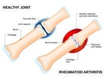 Normales Gelenk und rheumatoide Arthritis stock abbildung