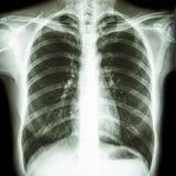 Normalna istoty ludzkiej klatka piersiowa Zdjęcie Stock
