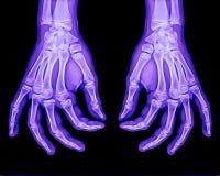 normalröntgenstråle för båda händer Arkivfoto