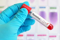 Norovirus positive blood sample. Blood sample tube positive with Norovirus test Royalty Free Stock Photos