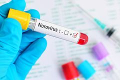 Norovirus positive blood sample. Blood sample tube positive with Norovirus test Stock Image