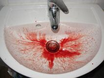 Nose Bleed Sink Story - 78 Stock Photo