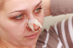After nose operation. Beautiful young girl with nose bandage Royalty Free Stock Photo