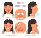Nose plastic surgery vector illustration. Front and profile views Royalty Free Stock Image