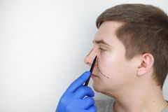 A man at the reception at the plastic surgeon. Before nose surgery, rhinoplasty royalty free stock image