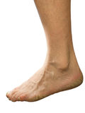Not groomed foot Royalty Free Stock Photography