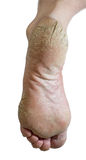 Not groomed foot Royalty Free Stock Photo