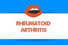 Nota di scrittura che mostra artrite reumatoide Foto di affari che montra malattia autoimmune che può causare i dolori articolari illustrazione vettoriale