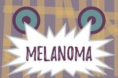 Note d'écriture montrant le mélanome La photo d'affaires présentant la tumeur maligne d'A s'est associée aux taupes bénignes de c illustration libre de droits