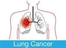 Notificação do câncer pulmonar ilustração royalty free