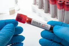 Novel coronavirus clinical antibody testing and Covid-19 diagnostic concept with doctor holding blood plasma sample used to test