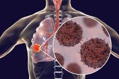 Nowotwór płuc, ilustracja ilustracja wektor