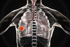 Nowotwór płuc, ilustracja royalty ilustracja