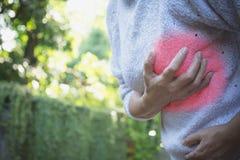 Nowotwór piersi jaźń - czek Zbliżenie kobieta z nowotworu piersi czekiem Zdjęcia Stock
