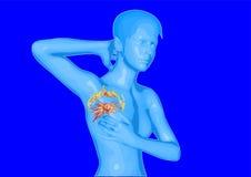 nowotwór piersi lekarstwa walki znaleziska funduszu pocztowy znaczek Zdjęcia Stock