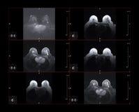 Nowotwór piersi MRI fotografia royalty free