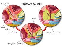 nowotwór prostata ilustracja wektor