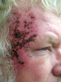 nowotwór skóra obraz royalty free