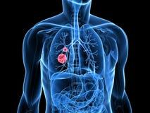 nowotworu płuco Fotografia Royalty Free